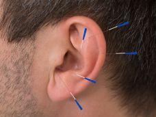 Ohr-Akupunktur- hilft bei allergischem Asthma