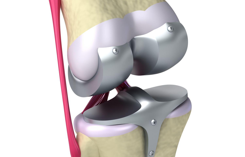 Künstliches Kniegelenk • Knieprothese