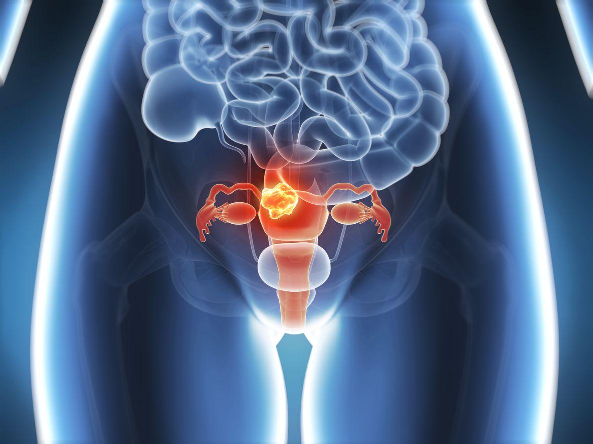 Hysterektomie • Entfernung der Gebärmutter
