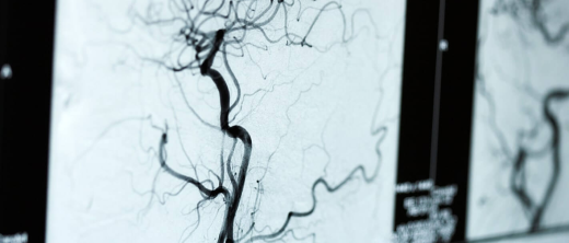 angiografie.jpg